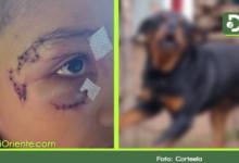 Photo of Ataques de perros causan preocupación; en el último mes se registran 2 casos en Rionegro