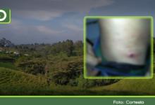 Photo of Rionegro: Hombre recibió disparos con arma traumática, cuando intentó robar una bicicleta